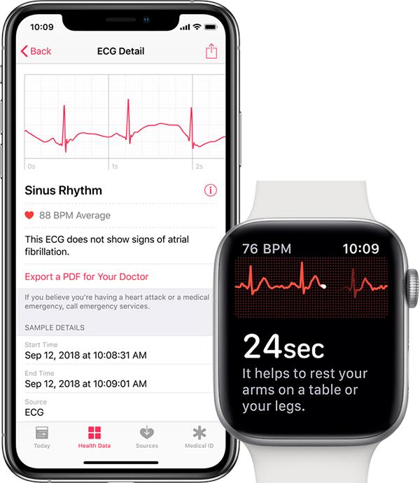 AppleWatch Series4向けの心電図機能、watchOS 5.1.2で利用可能に